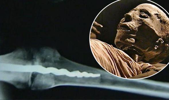 mummy-surgery-knee-590080.jpg
