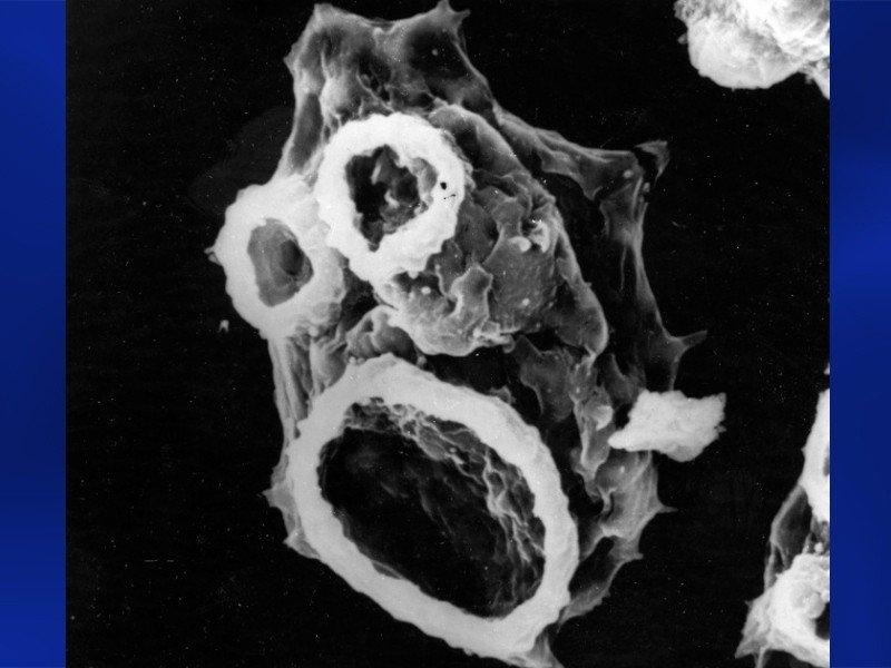 10. Неглерия Фоулера Эта свободно живущая амеба встречается в пресных теплых водоемах, почве и плава