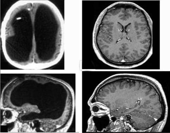 Для сравнения: слева мозг обозначенного выше человека, а справа – нормального.