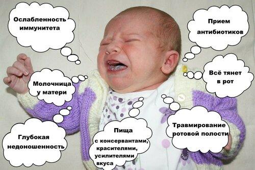 Лечение молочницы на языке у взрослых
