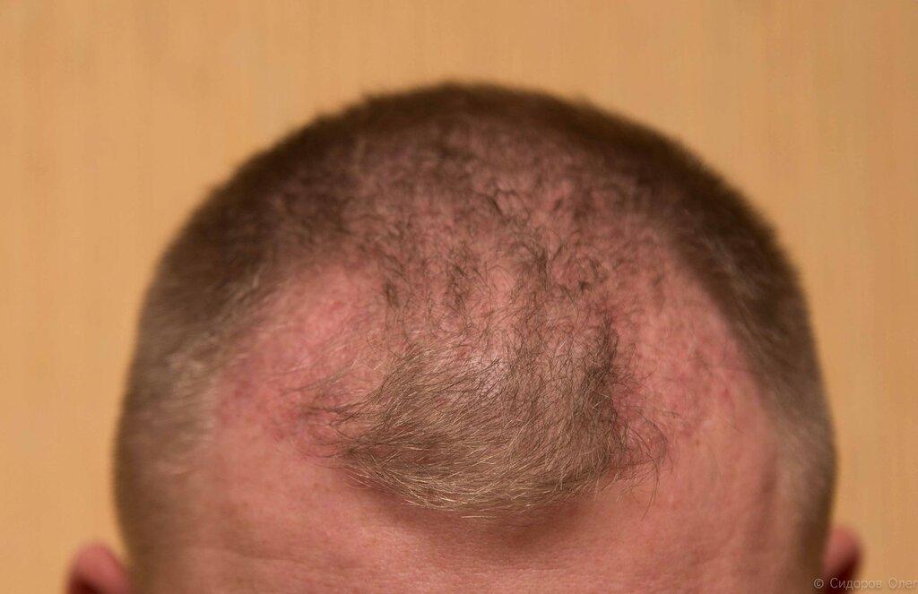 Голова 2 месяца-1.jpg