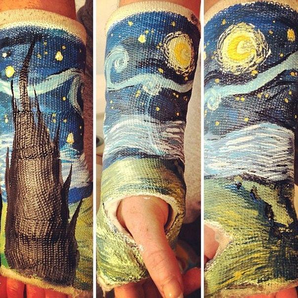 Как разрисовать гипс на ноге