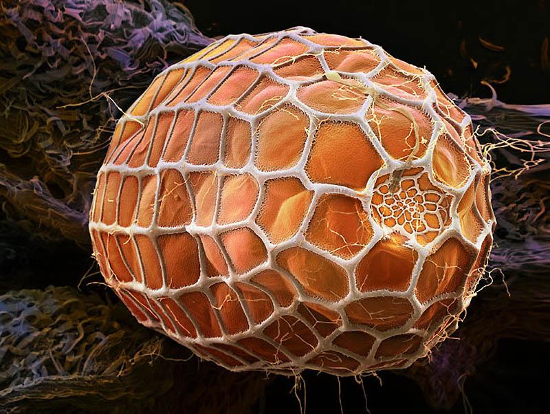 9. Яйцо нимфалиды