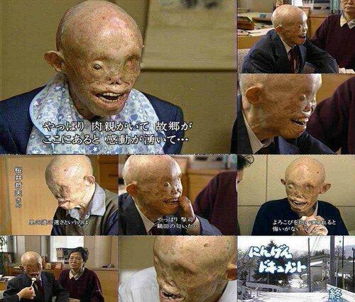 Один из немногих, кому удалось выжить после ядерного удара США по Японии