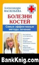 Книга Болезни костей: Самые эффективные методы лечения djvu 3,5Мб