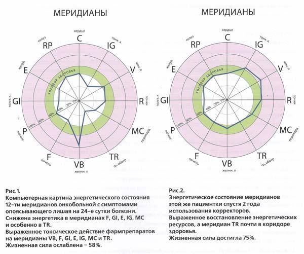 Энергетическое состояние онкобольной с КФС