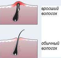 Вросший волос