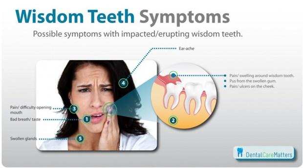Как уменьшить боль, когда режется зуб мудрости 0 e5312 6b99a575 orig