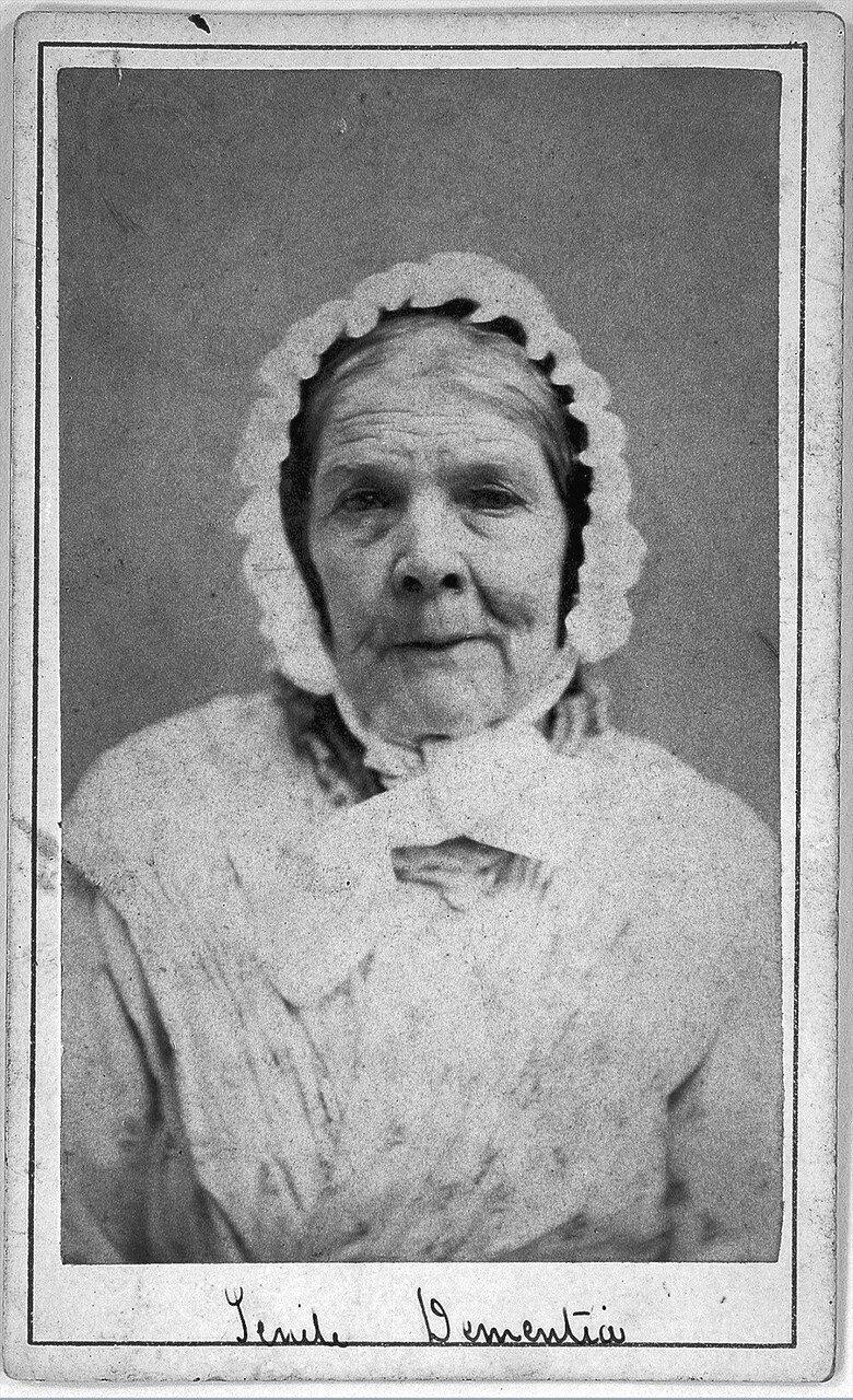 Женщина со старческим слабоумием