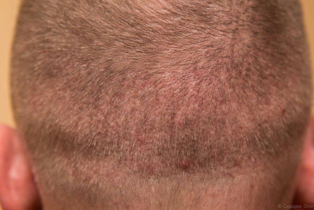 Голова 2 месяца-5.jpg