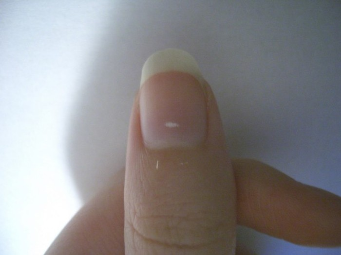 Что могут сказать ногти о нашем здоровье