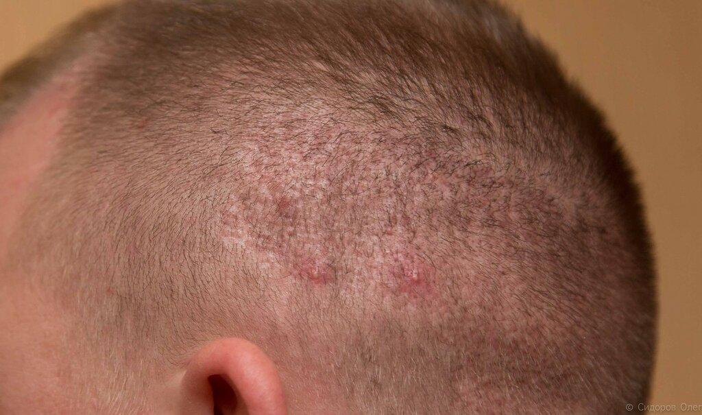 Голова 2 месяца-7.jpg
