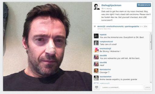 Жена Хью Джекмана спасла нос актера от раковой опухоли