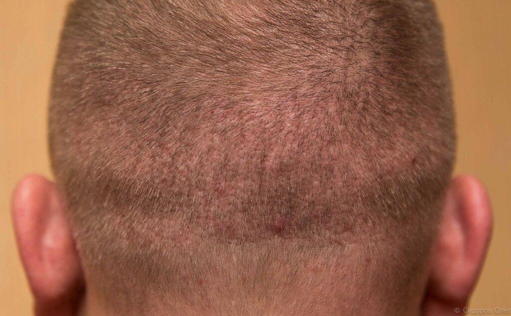 Голова 2 месяца-6.jpg