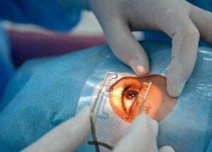 Последствия операции в Св. Троице – женщина лишилась глаза
