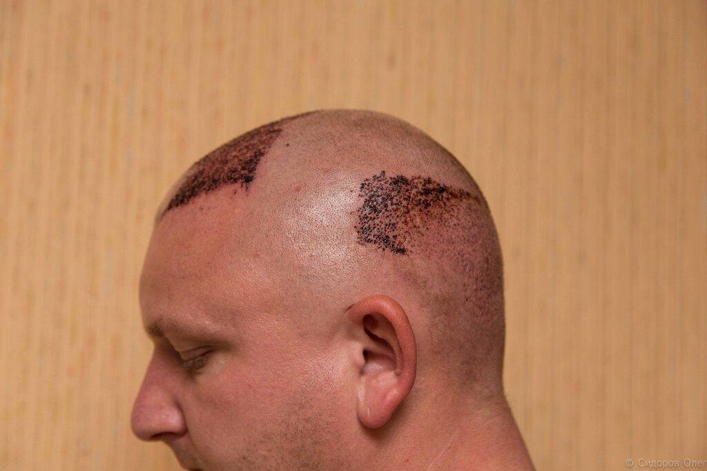 Пересадка волос турция