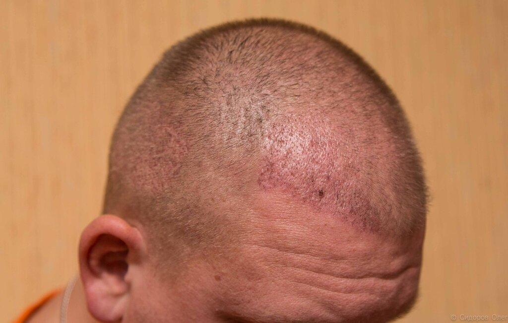 Голова стадия3-2.jpg