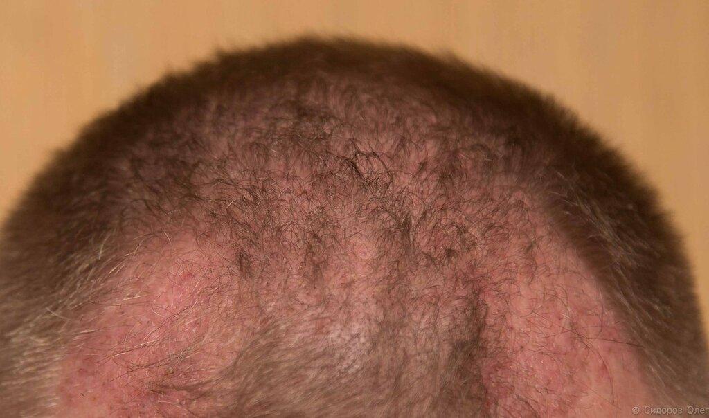 Голова 2 месяца-2.jpg