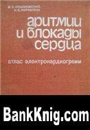 Книга Аритмии и блокады сердца (атлас электрокардиограмм)