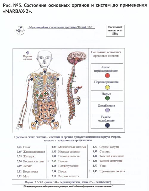 Состояние органов и систем до применения Марбакс 2