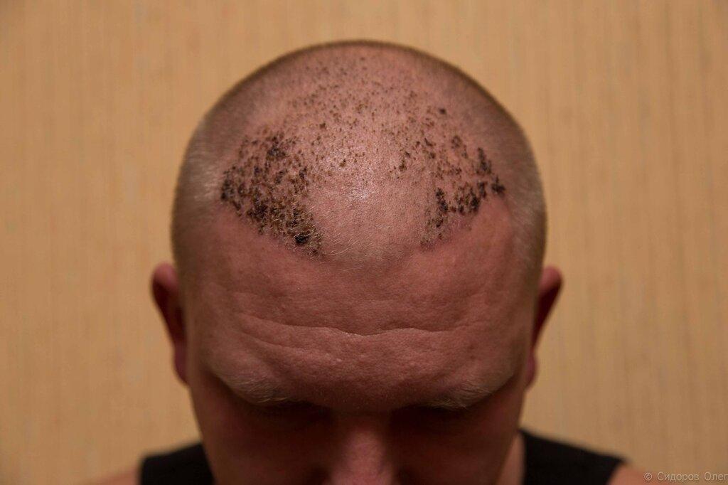 Народное средство против жирных волос