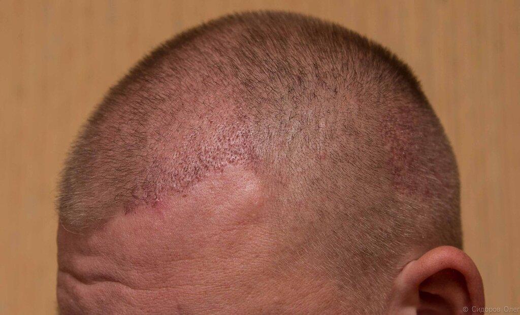 Голова стадия3-4.jpg