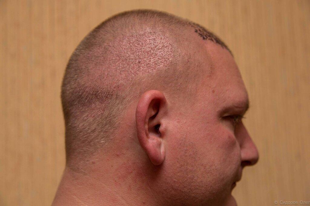 Голова-3.jpg