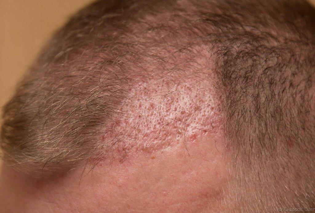 Голова 2 месяца-8.jpg