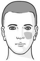 Все болезни отражаются на лице