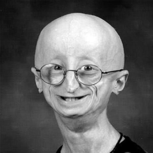 В США 17 летний парень умер от старости 0 115942 f60e1c02 orig