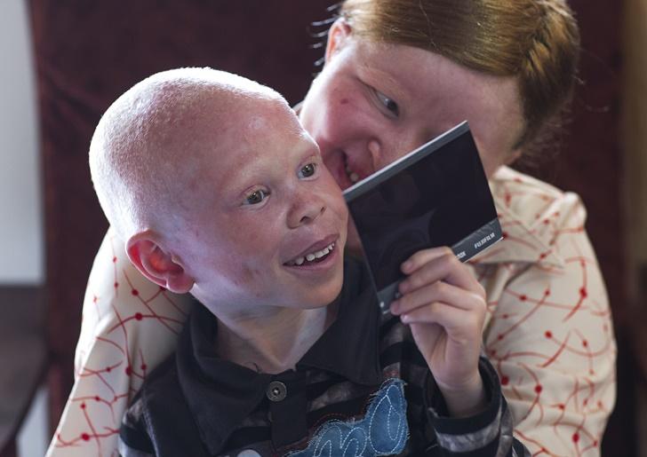 32-летняя Мариам тоже альбинос, она этим детям как мать. В 2008 году она потеряла обе руки и ребенка