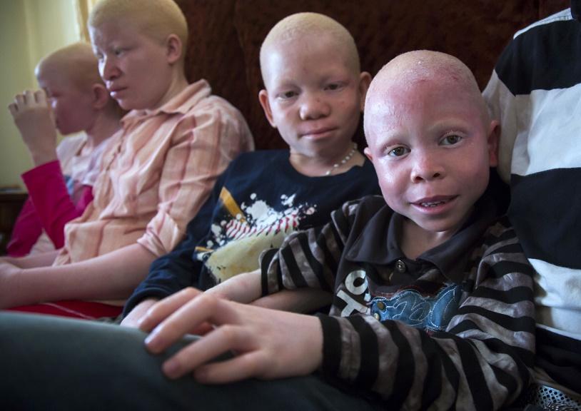 Танзанийские альбиносы, чьи тела стоят дороже золота