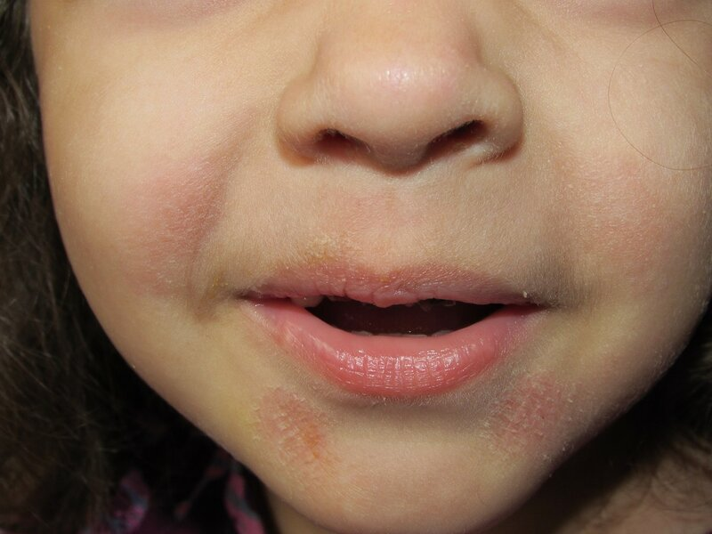 Шелушащиеся пятна на коже ребенка фото