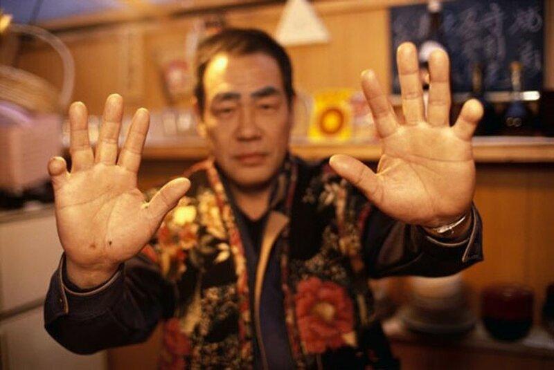 Протезирование отрезанных пальцев для японской Якудзы 0 13c091 fb294b77 XL