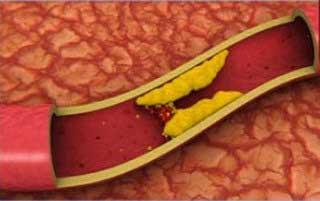 Лечение облитерирующего атеросклероза нижних конечностей.jpg