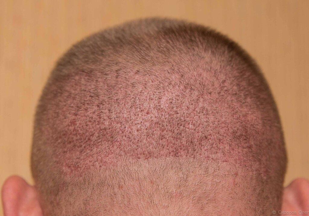 Голова стадия3-6.jpg