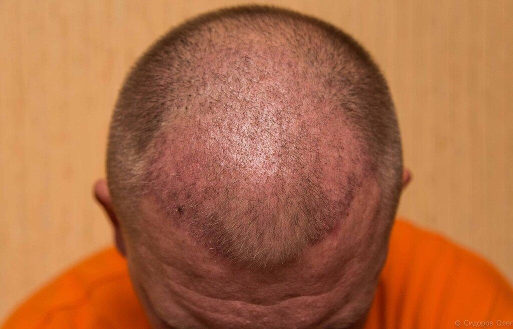 Голова стадия3-1.jpg