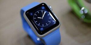 Apple Watch завоевали 75% мирового рынка «умных» часов