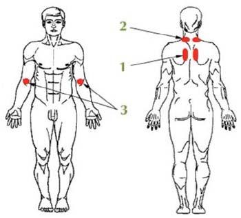 Схема расположения КФС при заболеваниях бронхолегочной системы
