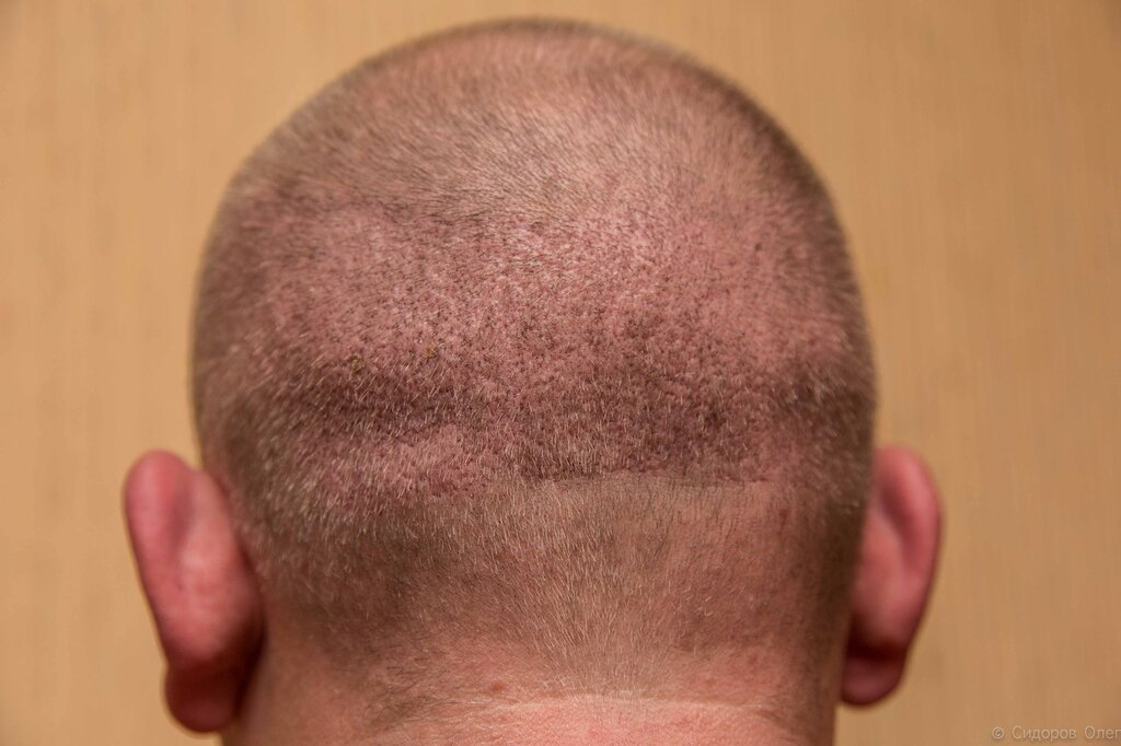 Масляной комплекс для питания и восстановления волос biodelica отзывы