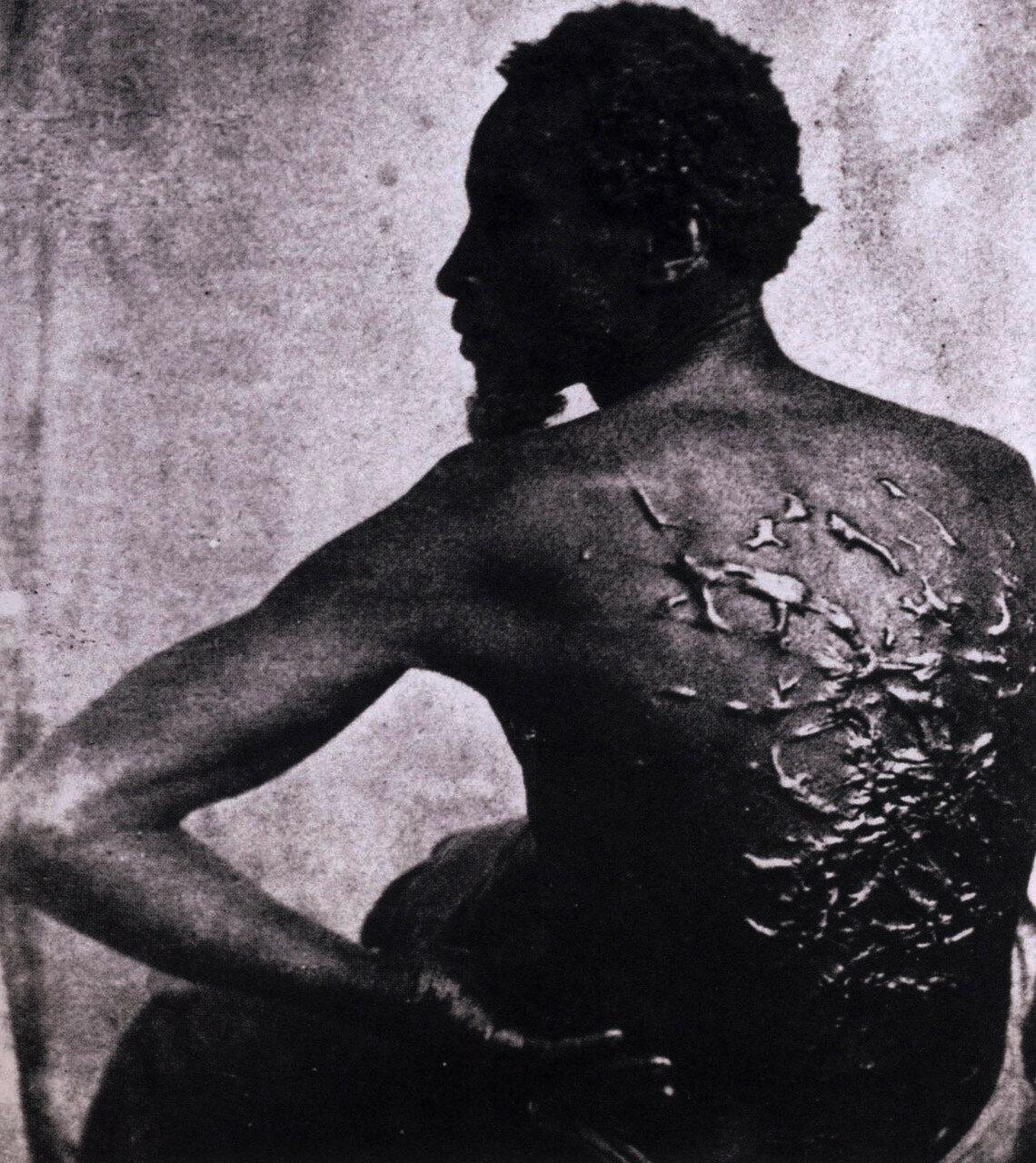 1863. Шрамы на теле бывшего раба