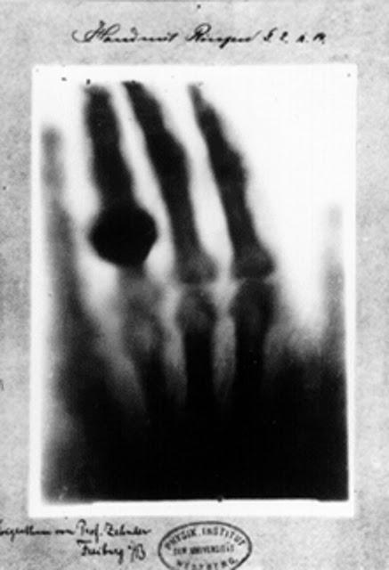 Первый рентгеновский снимок, 1895 год В 1895 году профессор физики по имени Вильгельм Конрад Рентген