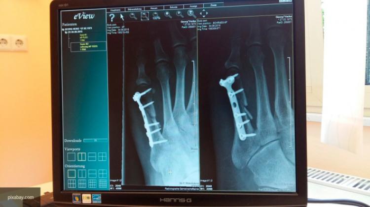 Ученые поведали  оновом методе  лечения переломов