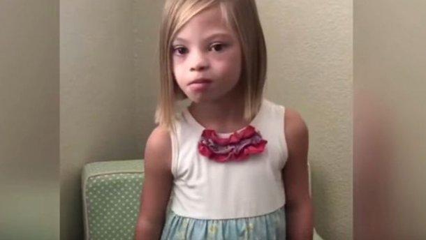 Девочка изУкраины ссиндромом Дауна стала знаменитостью вАмерике