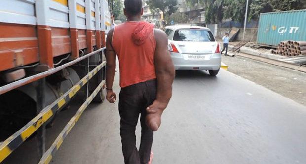 Индийца с огромной рукой родственники выгнали из дома, окрестив порождением дьявола (5 фото)