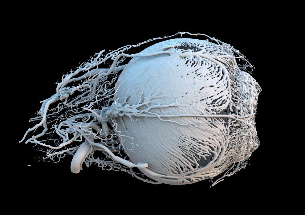 6. Плаценты мышей. Разница в цвете — из-за разницы иммунной системы матери. Плацента (лат. «леп