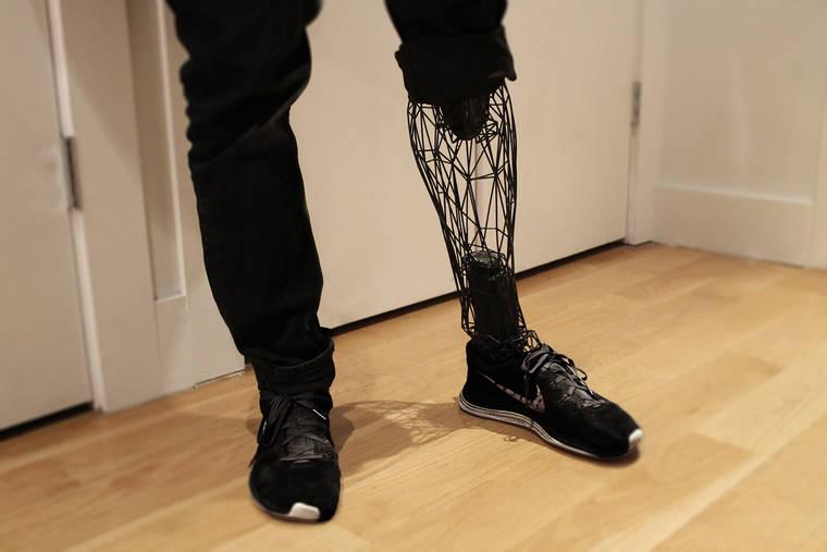 Exo Prosthetic Leg - An incredible 3D printed titanium prosthesis