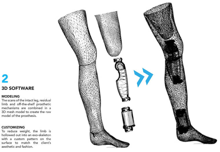 Exo Prosthetic Leg - An incredible 3D printed titanium prosthesis