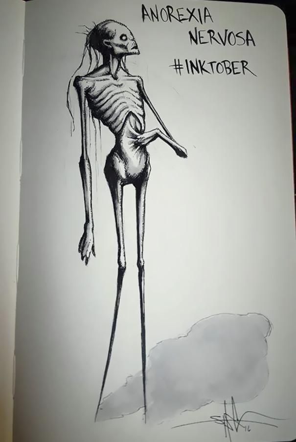 Анорексия.