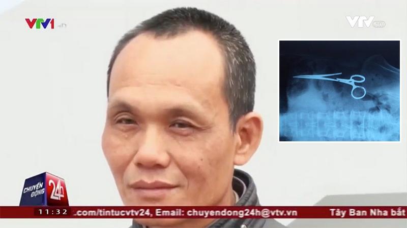 Из вьетнамца достали ножницы, забытые в нем в 1998 году